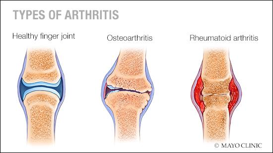 Una ilustración médica de una articulación del dedo sana, una con osteoartritis y otra con artritis reumatoide.