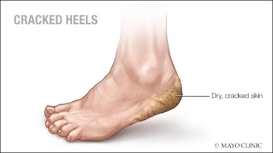 Ilustración médica de talones con piel seca y agrietada