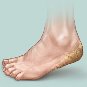 a medical illustration of the dry, cracked skin of cracked heels