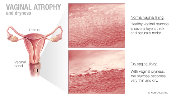 a medical illustration of vaginal atrophy and dryness