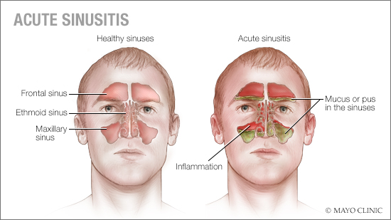 a medical illustration of healthy sinuses and acute sinusitis