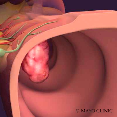 medical illustration - colon cancer