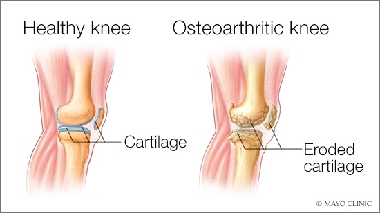 medical illustration of osteoarthritis