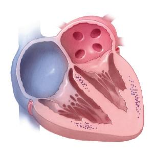 a medical illustration of a heart under attack, cardiac sarcoidosis