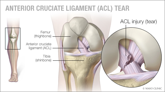 a medical illustration of an anterior cruciate ligament (ACL) tear
