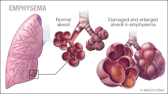 a medical illustration of emphysema
