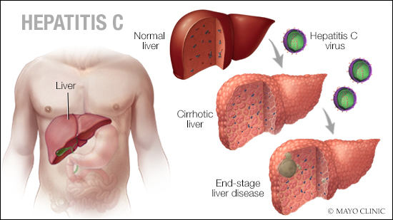 a medical illustration of hepatitis C