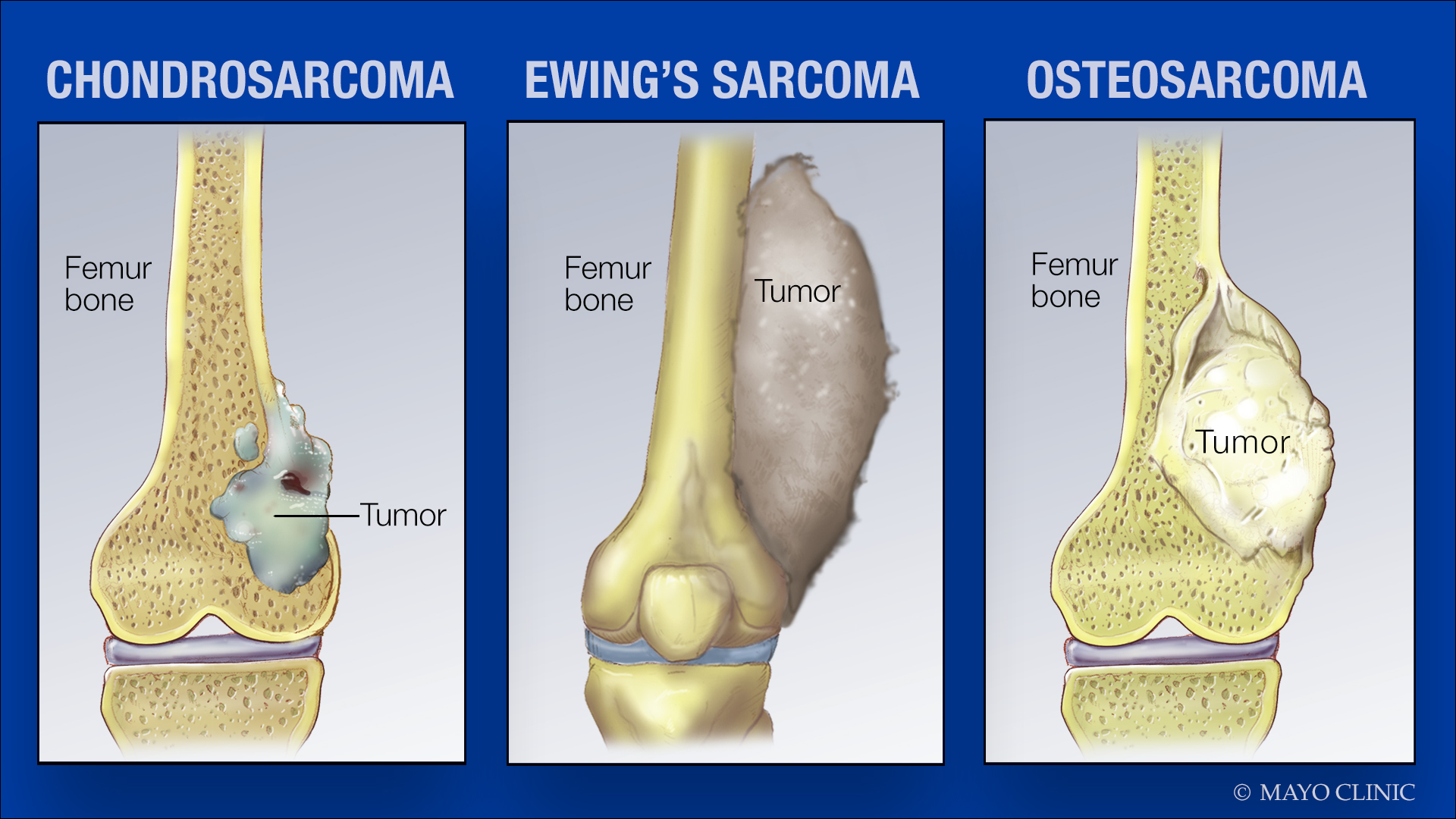 medical illustrations of sarcoma tumors