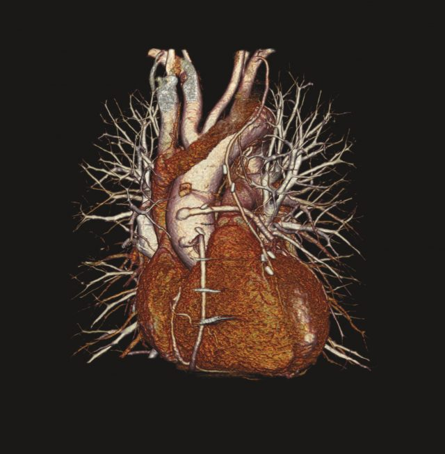 an enhanced CT scan of a heart