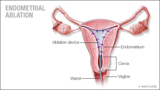 a medical illustration of endometrial ablation