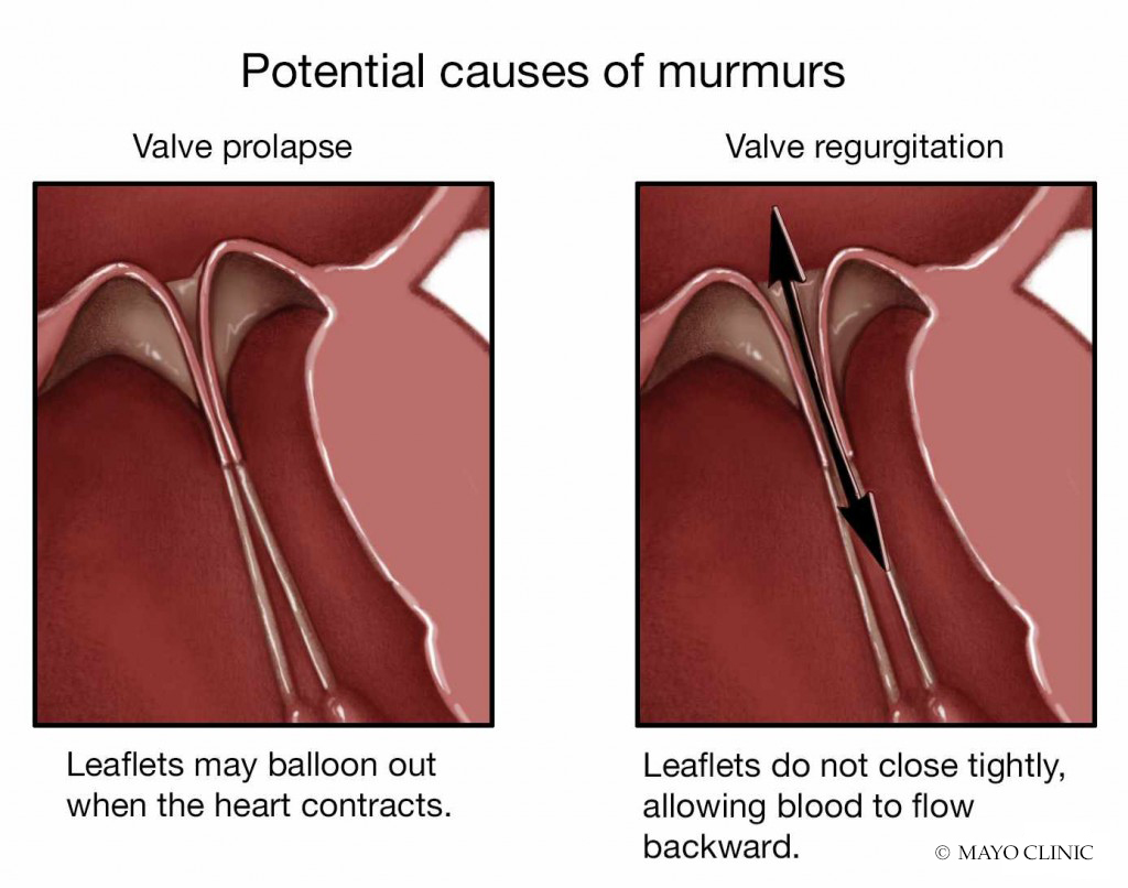 medical illustration for potential causes of murmurs with valve prolapse or valve regurgitation