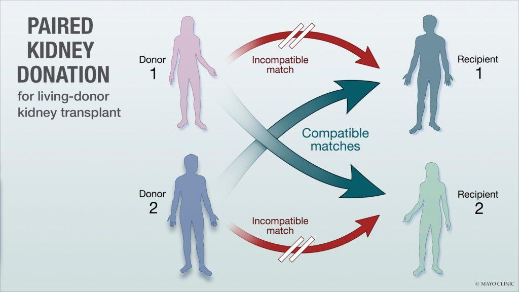 Ilustración médica de la donación renal cruzada