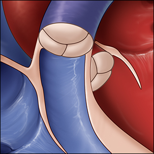 a medical illustration of a normal pulmonary valve of the heart