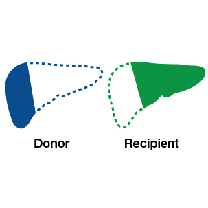 infographic for living liver donation