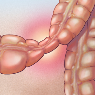Medical illustration of irritable bowel syndrome (IBS)