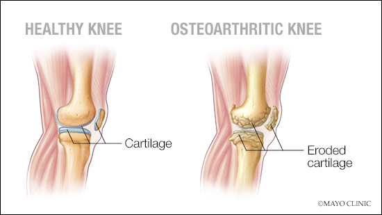 a medical illustration of a healthy knee joint and one with osteoarthritis