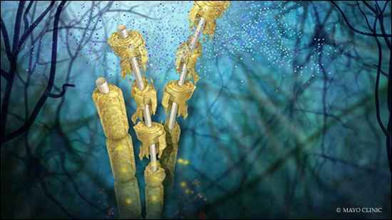 a medical illustration of the nerve damage caused by multiple sclerosis (MS)