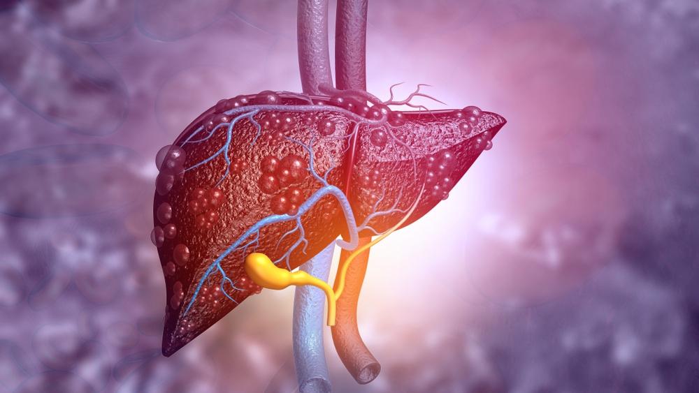 Los investigadores de Mayo Clinic identifican una nueva terapia potencial para tratar enfermedades hepáticas