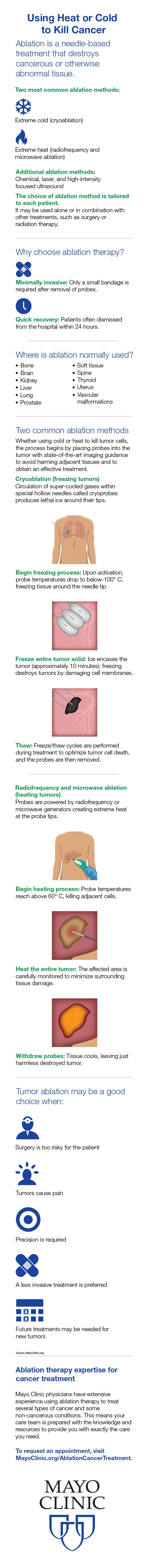 Infographic: Minimally invasive pancreatic cancer surgery