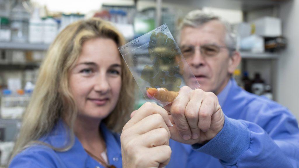 La Dra. Melissa Murray y el Dr. Dennis Dickson miran un portaobjetos
