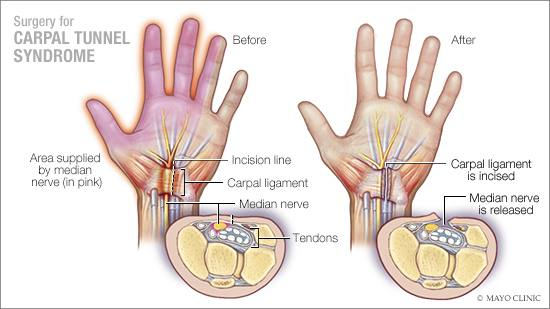 a medical illustration of surgery for carpal tunnel syndrome