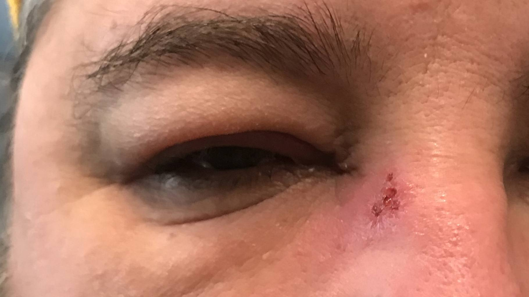 A swollen eye with shingles lesion on the bridge of the nose.