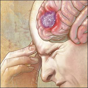 a medical illustration of a brain tumor