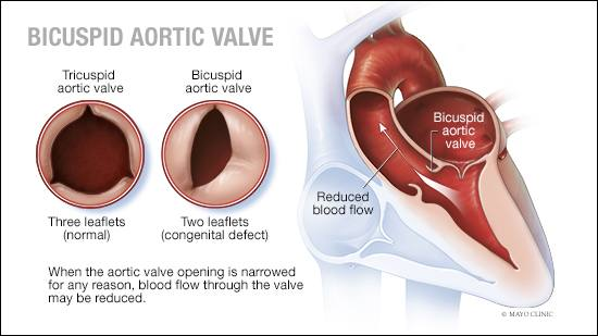a medical illustration of a normal tricupid aortic valve and a bicuspid aortic valve, which is a contenital defect
