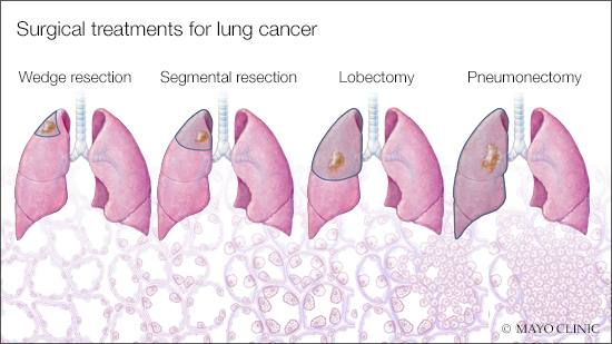 a medical illustration of surgical treatments for lung cancer