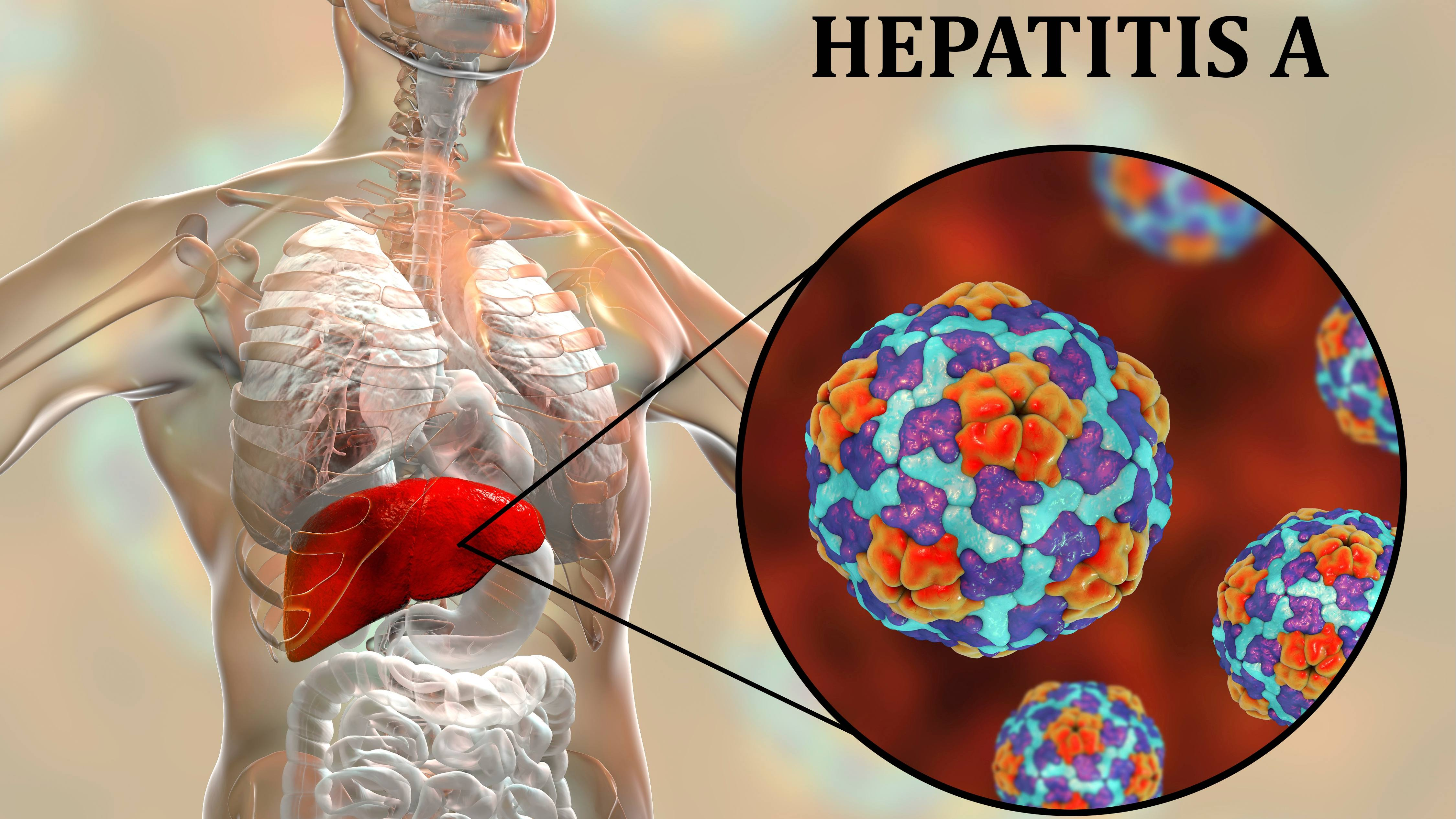graphic of internal organs, highlighting the liver and highlighting Hepatitis A