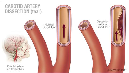 a medical illustration of carotid artery dissection (tear)