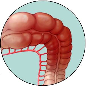 a medical illustration of ischemic colitis