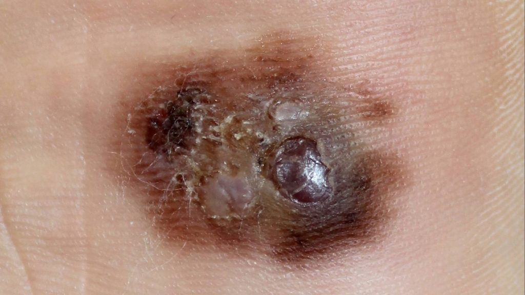 close up of a melanoma plantar on a foot surface