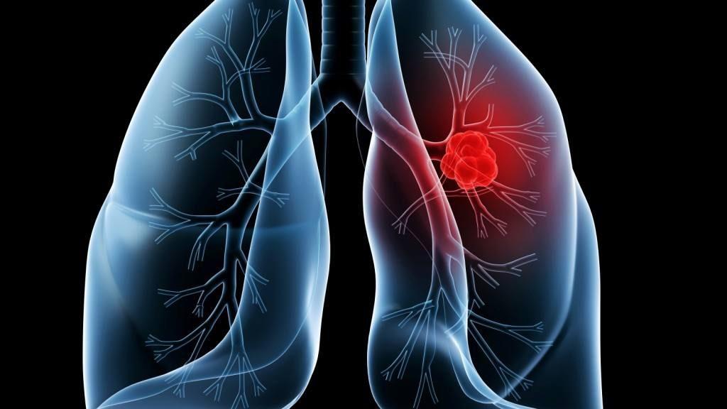 Ilustración de unos pulmones con un tumor canceroso