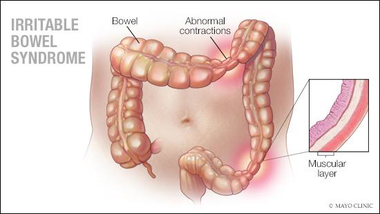 a medical illustration of irritable bowel syndrome