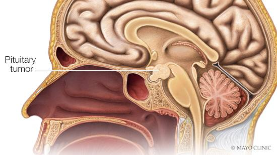 Consumer Health: Treating pituitary tumors