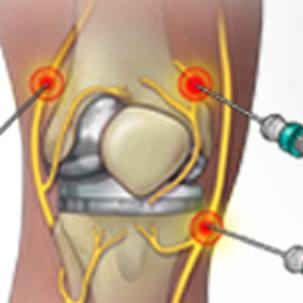 a medical illustration of a nerve ablation procedure for pain after knee replacement