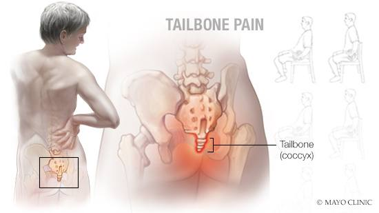 a medical illustration of tailbone (coccyx) pain