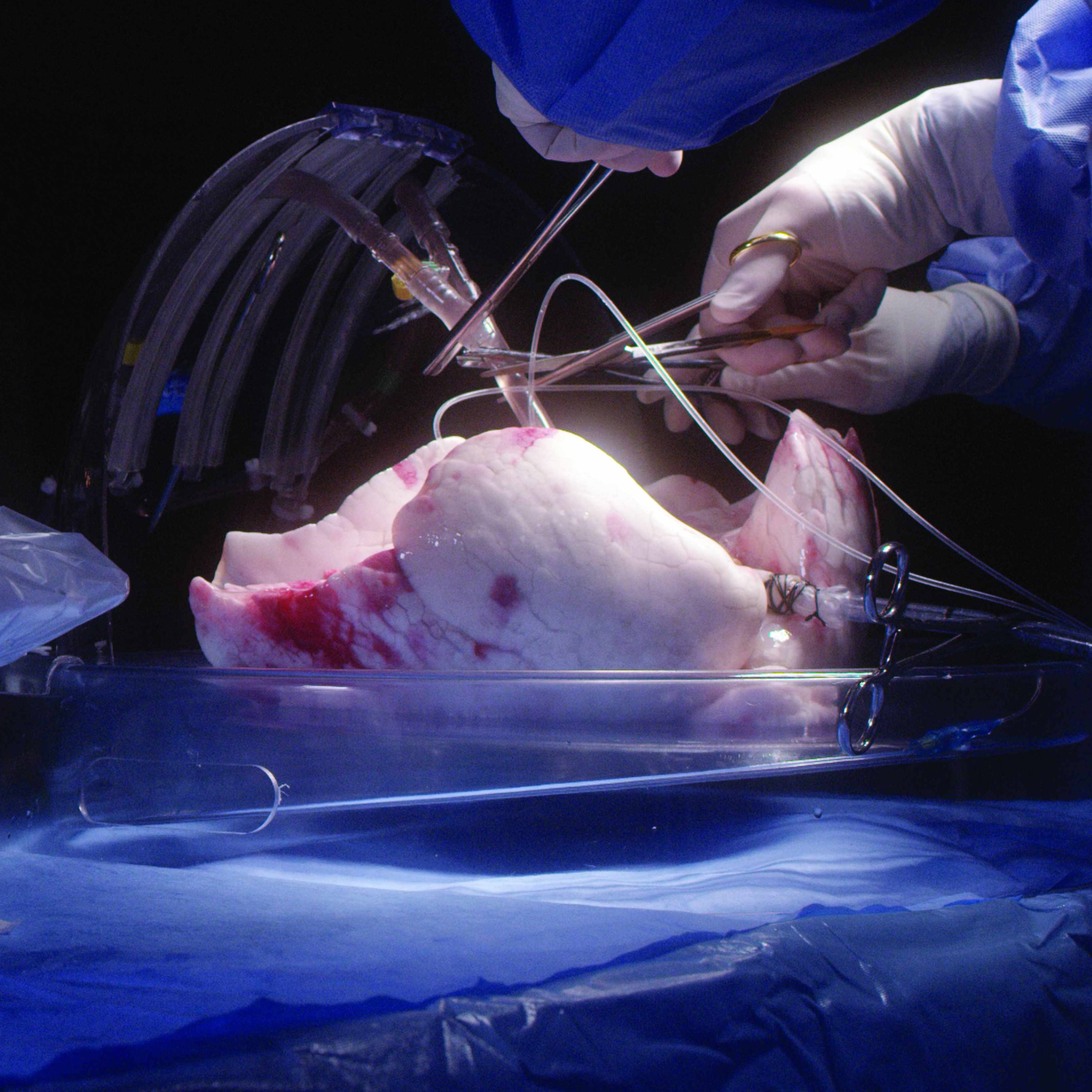 Ex vivo lung perfusion in surgery