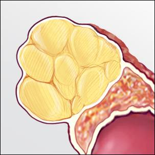 a medical illustration of adrenal adenoma