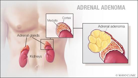 adenoma de próstata central vs