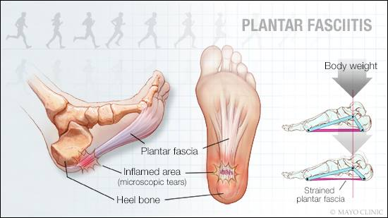 a medical illustration of plantar fasciitis