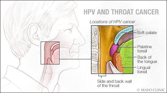 a medical illustration of HPV and throat cancer