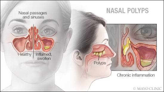 a medical illustration of nasal polyps