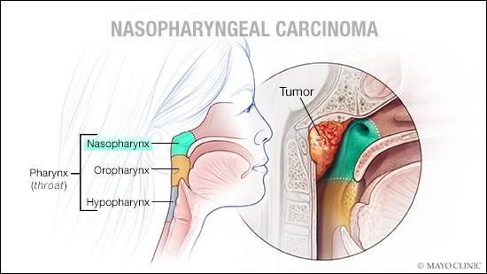 a medical illustration of nasopharyngeal carcinoma
