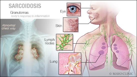 a medical illustration of sarcoidosis