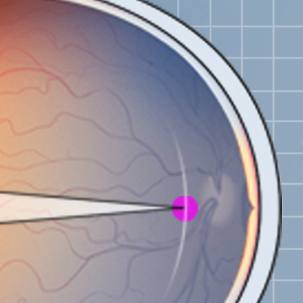 a medical illustration of myopia or nearsightedness