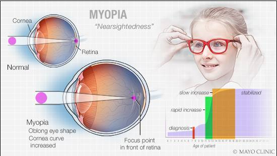 Mayo Clinic Q and A: Understanding nearsightedness in children