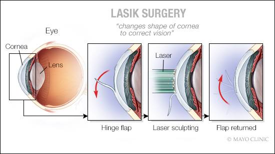 a medical illustration of LASIK surgery