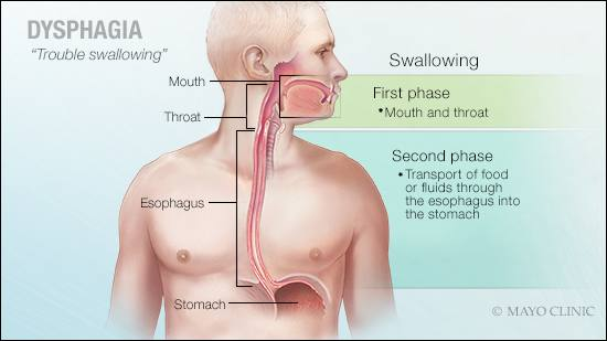 Mayo Clinic Q and A: Dysphagia is a common concern with several possible explanations